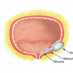 urologista curitiba